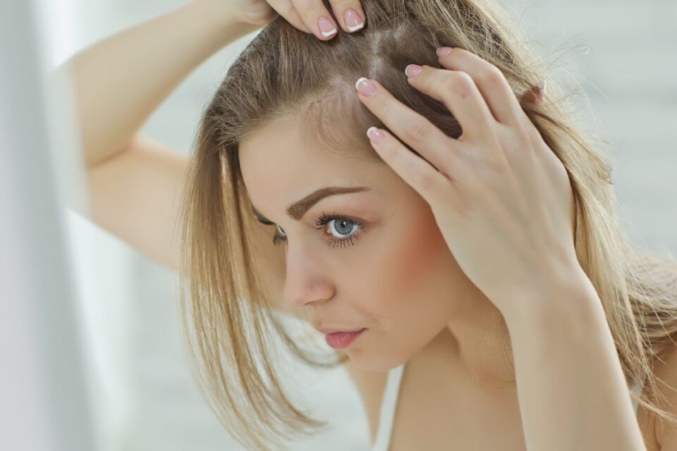 How To Get Rid Of Persistent Dandruff